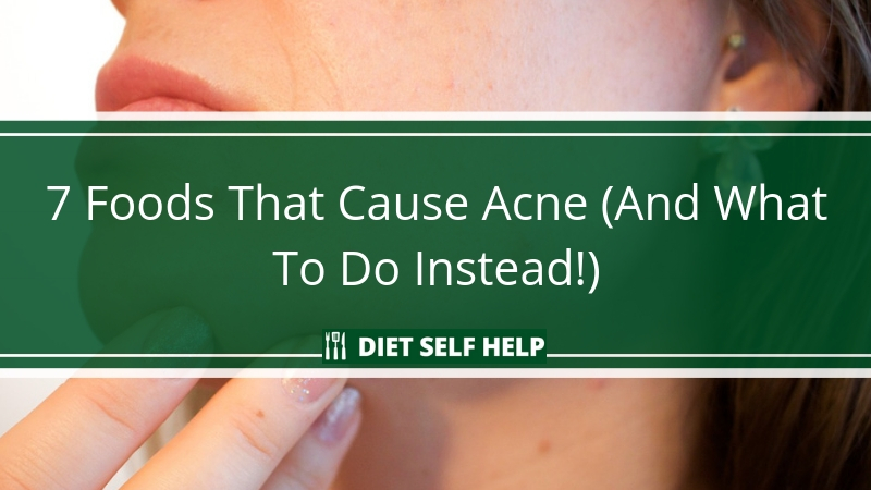 7 Foods That Cause Acne (And What To Do Instead!)